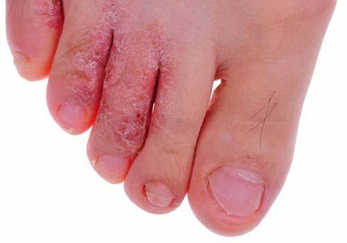 Địa chỉ chữa bệnh nấm kẽ chân bằng thuốc nam ở đâu tốt TPHCM