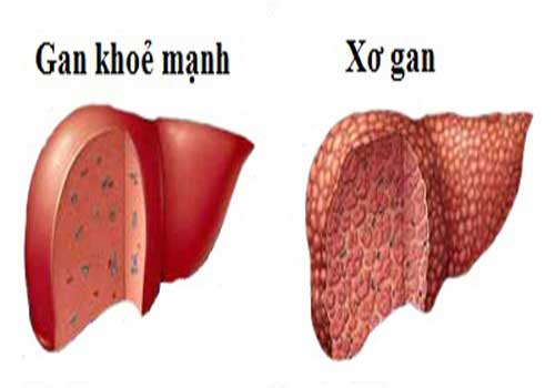 Địa chỉ chữa bệnh xơ hóa gan bằng Đông y ở đâu tốt TPHCM?