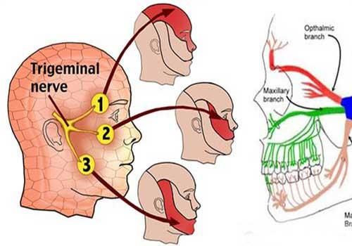 Địa chỉ chữa đau dây thần kinh số 5 bằng Đông y ở đâu tốt TPHCM