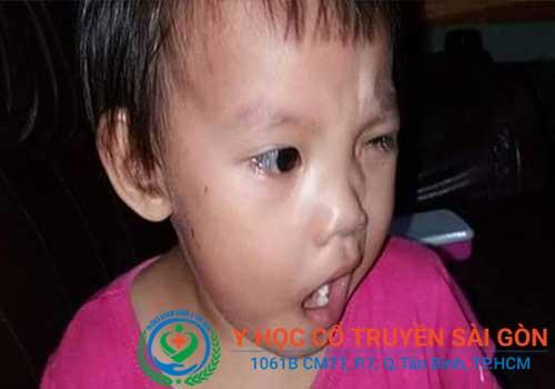 Méo mồm miệng do liệt dây thần kinh số 7 có thể gặp ở mọi lứa tuổi