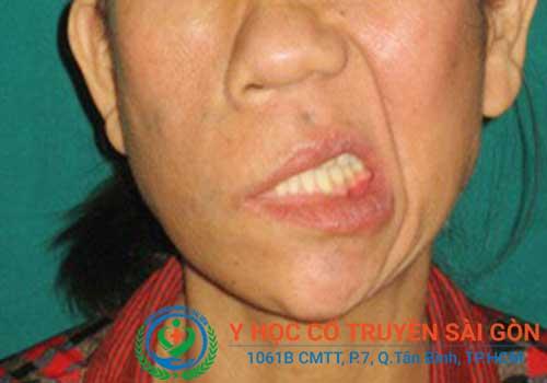 Địa chỉ điều trị và chữa méo mồm miệng bằng đông y ở đâu tốt TPHCM?