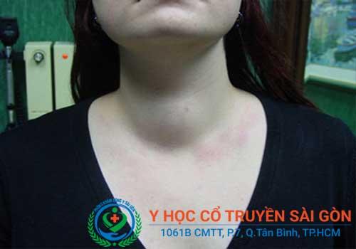 Bệnh bướu cổ là tình trạng bất thường của tuyến giáp