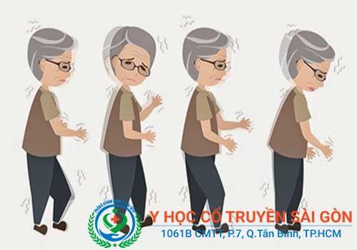 Bệnh chân tay run hoàn toàn có thể chữa khỏi