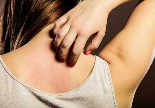 Hạn chế gãi để tránh bệnh giời leo lây lan rộng, khó chữa trị
