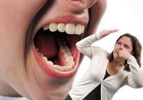 Nguyên nhân triệu chứng và cách chữa trị bệnh hôi miệng