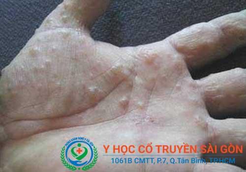 Địa chỉ khám và chữa bệnh tổ đỉa bằng Đông y ở đâu tốt TPHCM?