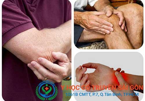 Viêm bao gân thường gặp ở các vị trí cổ tay, khuỷu tay, gót chân...