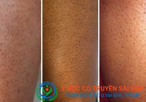 Địa chỉ khám và chữa bệnh viêm nang lông bằng đông y ở đâu TPHCM?
