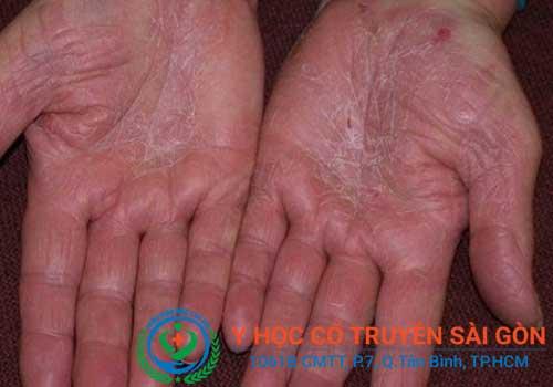 Địa chỉ khám và chữa bệnh nứt nẻ chân tay bằng Đông y ở đâu tốt TPHCM?