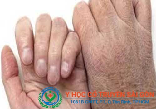 Địa chỉ khám và chữa nứt nẻ chân tay bằng đông y ở đâu tốt TPHCM?