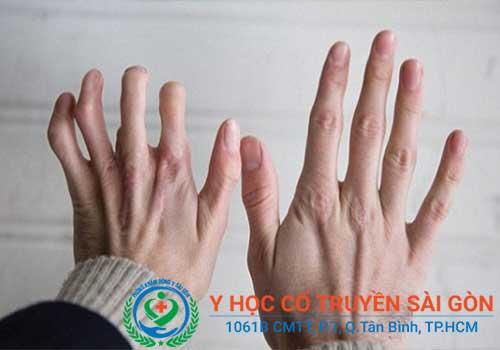 Bệnh viêm đa khớp dạng thấp nếu không điều trị sớm có thể gây biến dạng khớp
