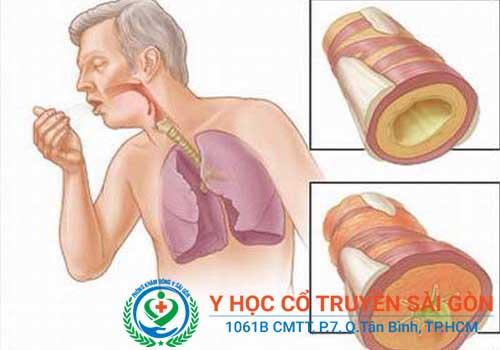 Địa chỉ khám và chữa viêm phế quản bằng đông y ở đâu tốt TPHCM