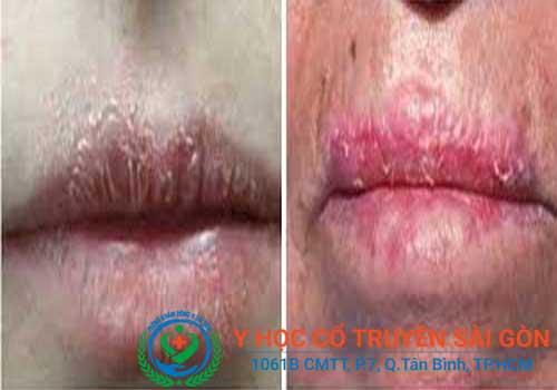 Bệnh chàm môi dễ bị nhầm lẫn sang những bệnh khác