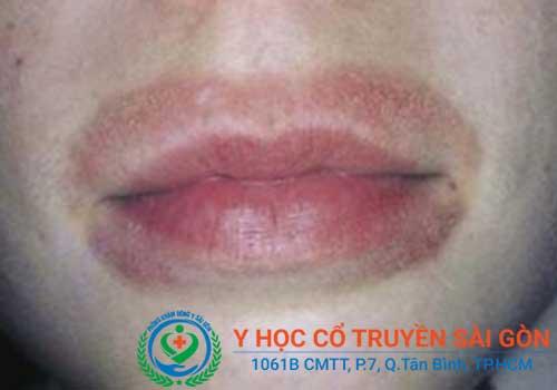 Bệnh chàm môi gây mất thẩm mỹ và khó chịu cho người bệnh