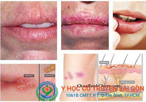 Điều trị và chữa bệnh chàm môi tận gốc