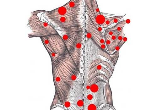Một số vị trí huyệt vị thực hiện thủy châm chữa bệnh đau lưng