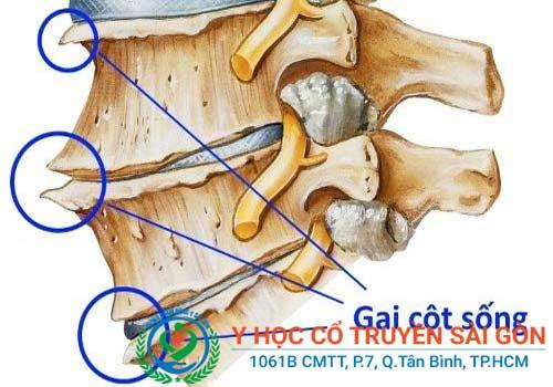Điều trị và chữa bệnh gai cột sống bằng phương pháp Đông y