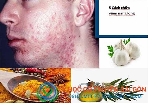 Có nhiều cách chữa bệnh viêm nang lông tại mặt, lưng, vùng kín