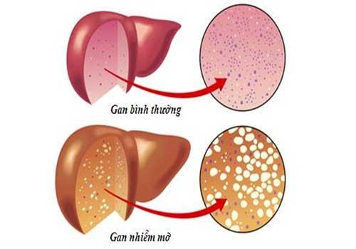 Bệnh gan nhiễm mỡ là gì?triệu chứng nguyên nhân và cách điều trị