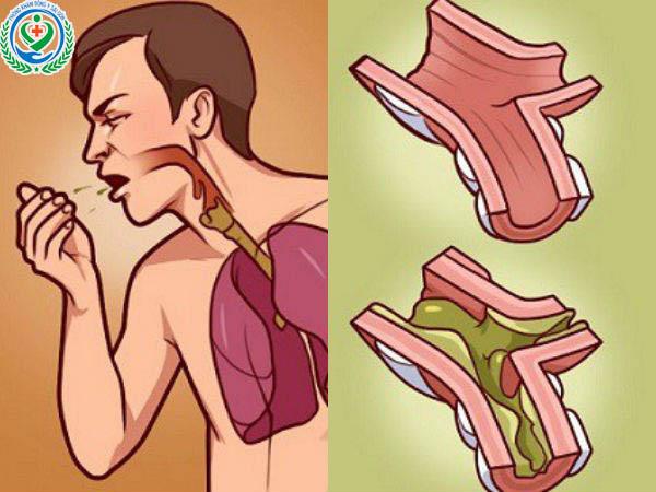 Bệnh giãn phế quản là gì? Triệu chứng và nguyên nhân gây nên