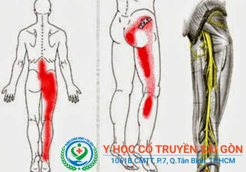 Chèn dây thần kinh hông và bên mông có thể do thoát vị đĩa đệm