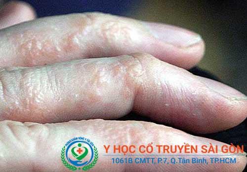 Triệu chứng bệnh tổ đỉa ở kẽ ngón tay