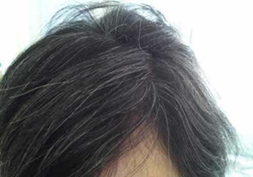 Kinh nghiệm và mẹo chữa bạc tóc sớm tại YHCT Sài Gòn