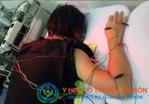 Điều trị viêm dây thần kinh bằng điện tử, châm cứu , bấm huyệt