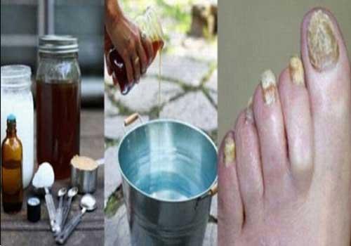 Kinh nghiệm và một vài mẹo chữa bệnh nấm móng tay hiệu quả