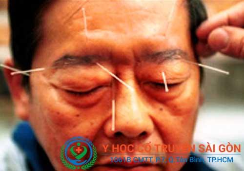 Châm cứu để chữa méo mồm miệng, liệt mặt cần thực hiện bởi bác sĩ có nhiều kinh nghiệm