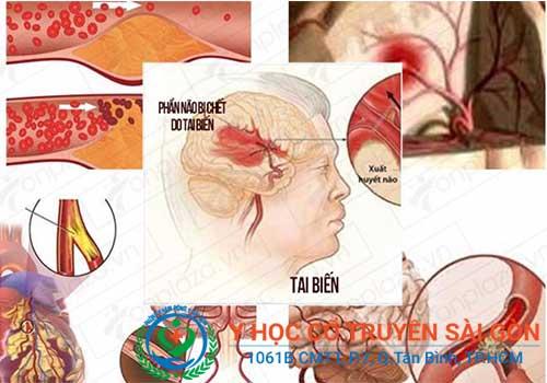 Có nhiều nguyên nhân dẫn đến liệt dây thần kinh số 7