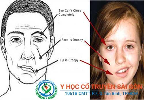 Biểu hiện thường thấy là mặt bị liệt