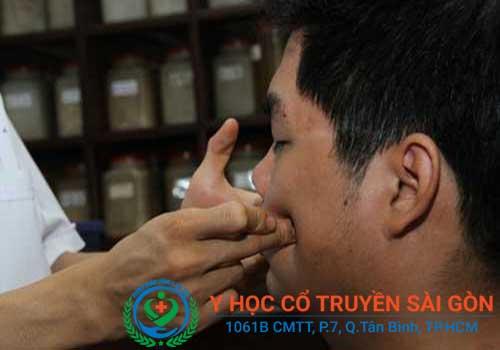 Liệt dây thần kinh số 7 có thể điều trị khỏi bằng châm cứu, bấm huyệt