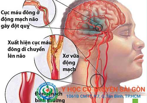 Liệt dây thần kinh số 7 có phải là tai biến không?