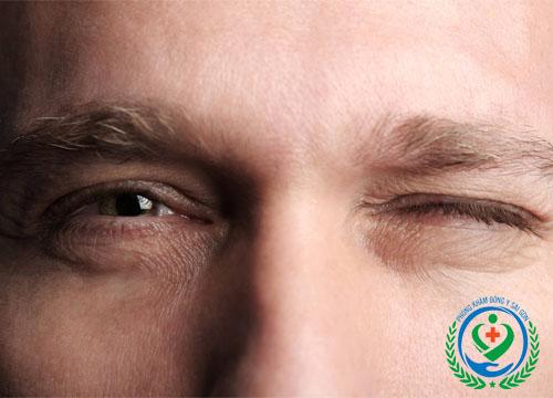 Mắt giật liên tục là bệnh gì?