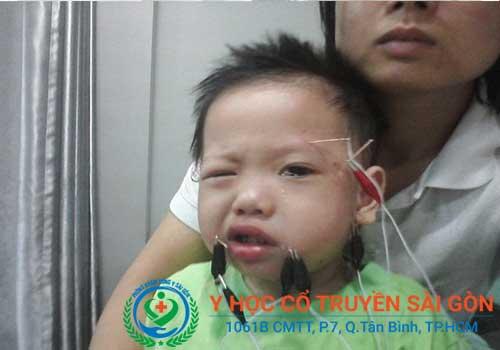 Méo mồm miệng do trúng gió có thể gặp ở cả người lớn và trẻ em
