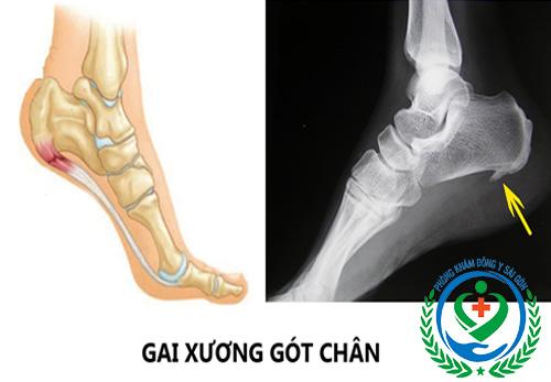 Đau gót chân là bệnh gì? Cách điều trị 1