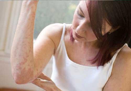 Bệnh viêm da dị ứng cũng có triệu chứng nổi mẩn đỏ ngứa toàn thân không rõ nguyên nhân