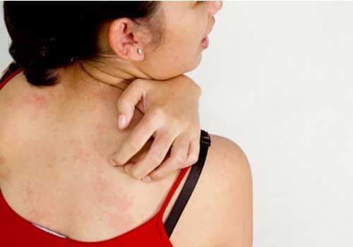 Nổi mẩn đỏ ngứa toàn thân không rõ nguyên nhân là bệnh gì
