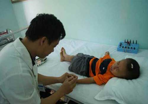 Ưu điểm của cấy chỉ trong Đông y là áp dụng được cho mọi đối tượng