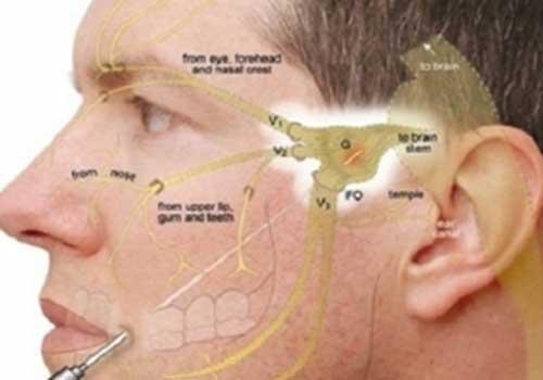 Phương pháp châm cứu dây thần kinh số 5 tại YHCT Sài Gòn
