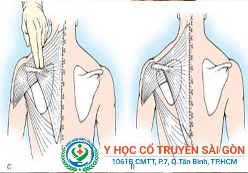 Phương pháp chữa bệnh teo cơ vai như thế nào