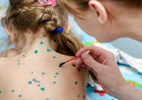 Phương pháp chữa bệnh thủy đậu cho người lớn và trẻ em như thế nào