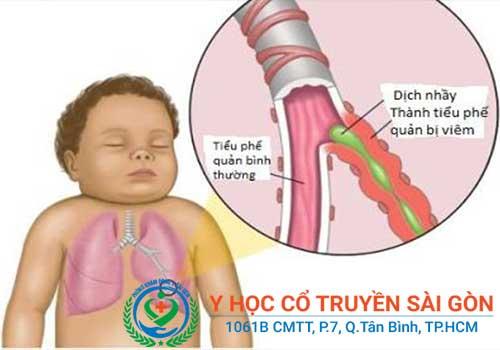 Bệnh viêm phế quản có thể gặp ở mọi lứa tuổi