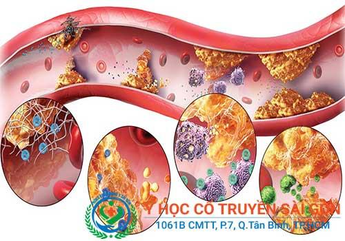 Rối loạn lipid máu là gì? Triệu chứng nguyên nhân biến chứng