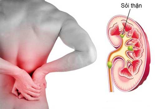 Bệnh sỏi thận là gì?nguyên nhân triệu chứng và cách điều trị