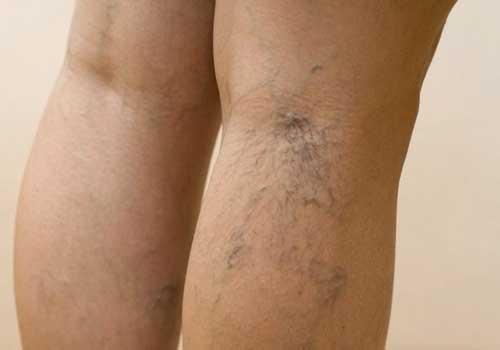 Suy giãn tĩnh mạch chân có nguy hiểm không