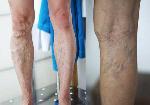 Bác sĩ chữa bệnh suy giãn tĩnh mạch chân giỏi ở tphcm