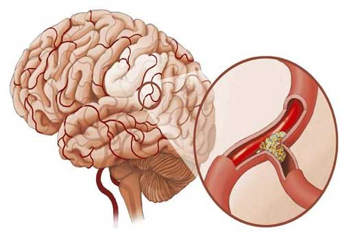 Chóng mặt nhức đầu do di chứng tai biến mạch máu não có cách điều trị như thế nào