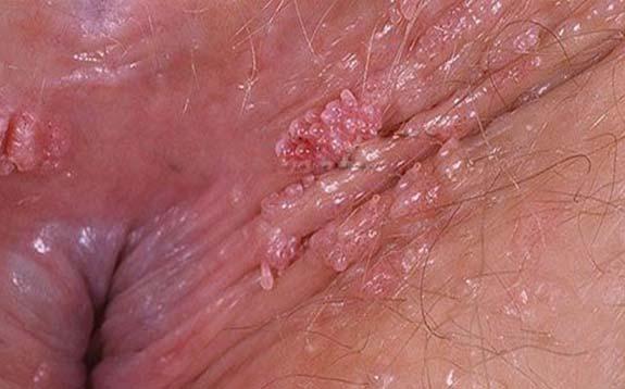 Hình ảnh bệnh sùi mào gà